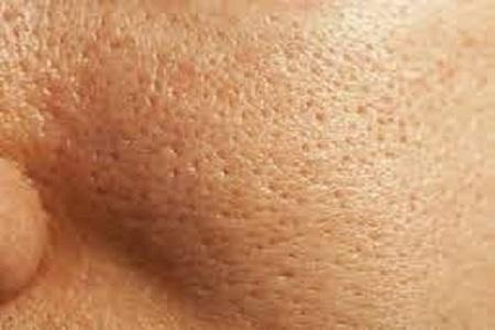 سندرم پوست پرتقال چیست؟